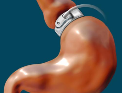 La pose d'un anneau gastrique virtuel pour maigrir sans effort